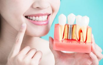 Why You Should Consider Getting Dental Implants